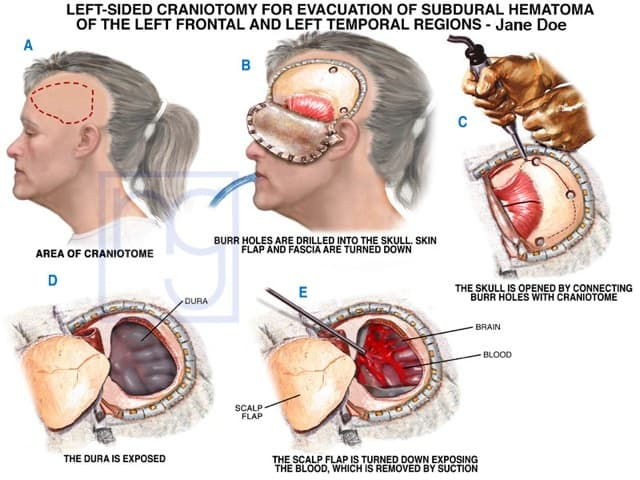 San Diego Craniotomy Injury Attorney