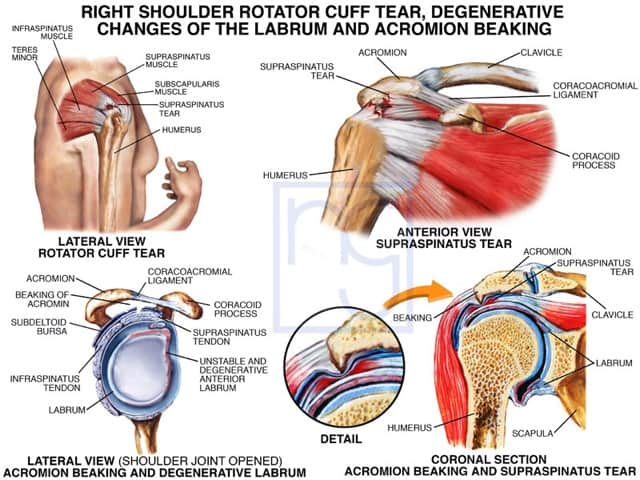 San Diego Rotator Cuff Tear Attorney
